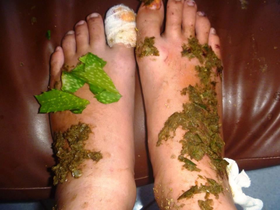 Behandlung mit traditioneller balinesischer Medizin